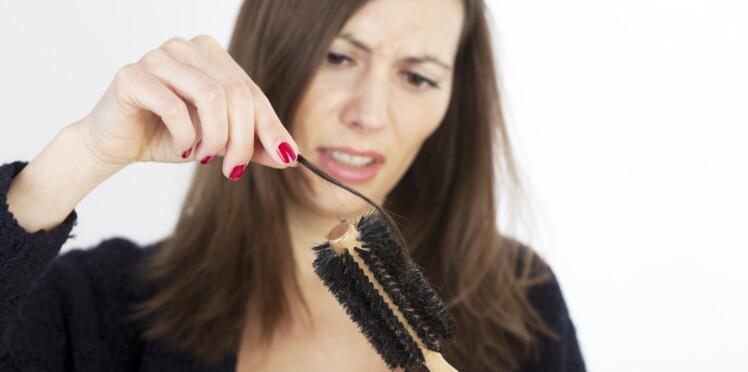Chute de cheveux, calvitie : une nouvelle étude prometteuse