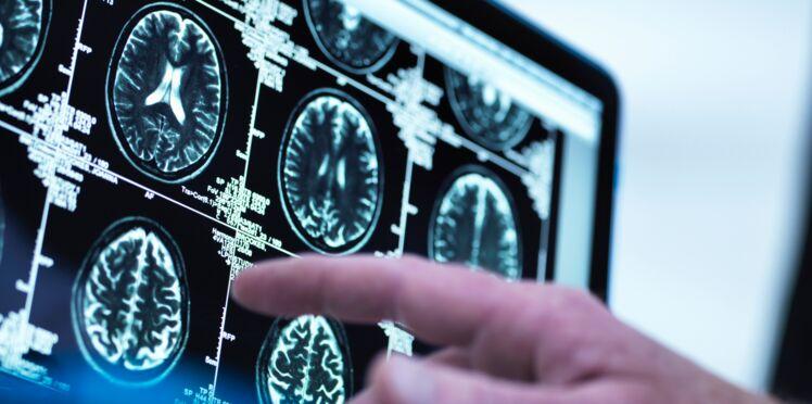 Comment savoir si votre cerveau est en bonne santé