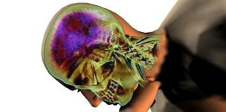 Des electrodes contre la maladie de Parkinson