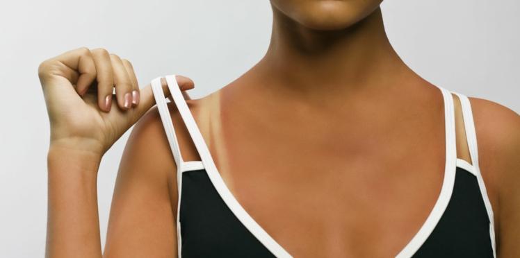 Découverte d'une molécule qui fait bronzer la peau sans s'exposer au soleil