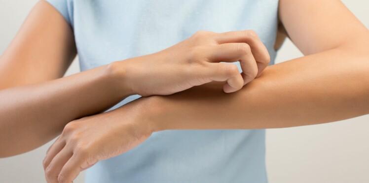 Dermatite atopique : sur la piste d'un nouveau traitement