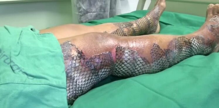De la peau de poisson pour soigner les brûlures