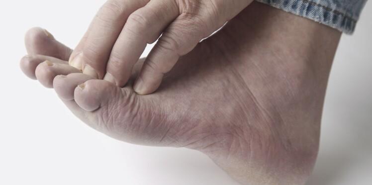 Diabète : l'atteinte du pied, point de départ d'une démence ?