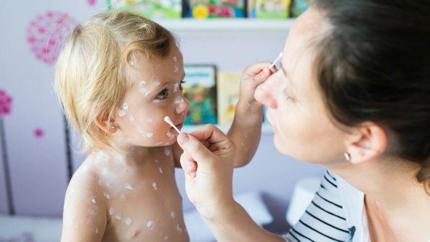 L'épidémie de varicelle prend de l'ampleur