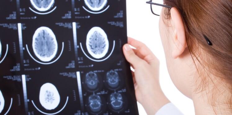 Epilepsie : Près d'un Français sur dix pense qu'elle est d'origine surnaturelle