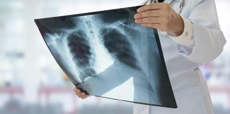 Un étudiant atteint par la tuberculose respiratoire, une maladie très contagieuse