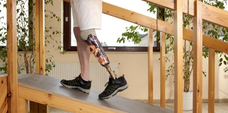 Handicap International va bientôt fabriquer des prothèses grâce à l'impression 3D