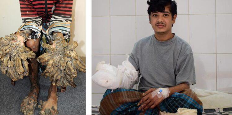 L'homme arbre : Abul Bajandar sur la voie de la guérison