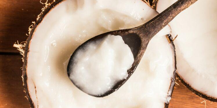 L'huile de coco aussi mauvaise pour la santé que l'huile de palme