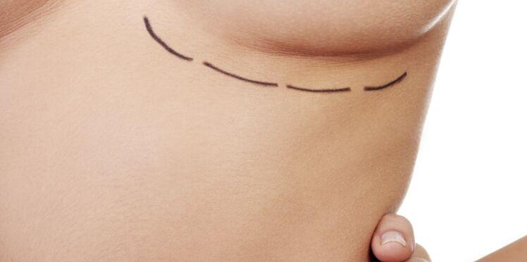 Implants mammaires : s'informer avant de se décider