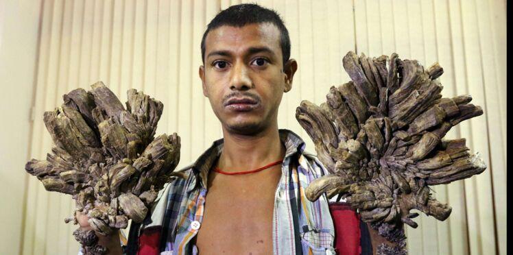 « L'homme arbre » bientôt opéré pour lui retirer ses verrues géantes