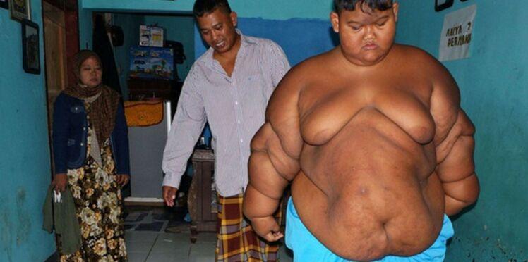 """Indonésie : l'opération réussie de l'enfant le """"plus gros du monde"""""""