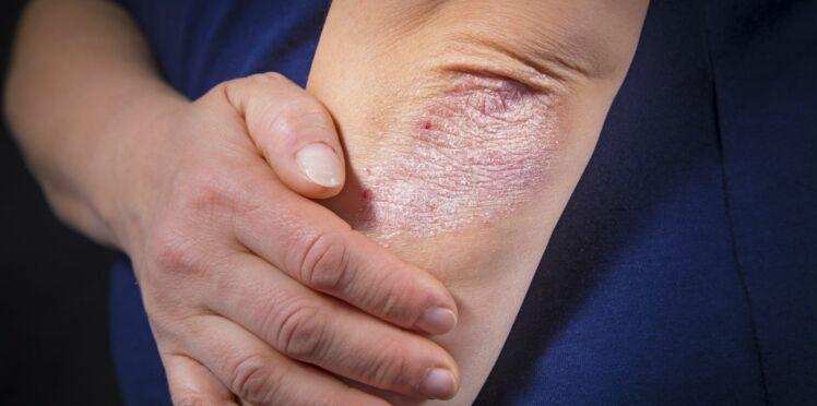 Maladies de peau : un Français sur trois est touché