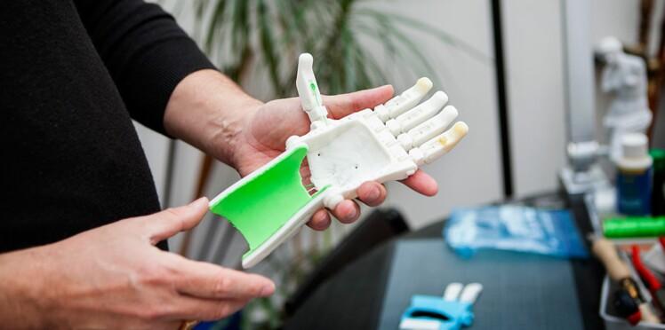 Maxence : le premier enfant français à recevoir une prothèse imprimée en 3D