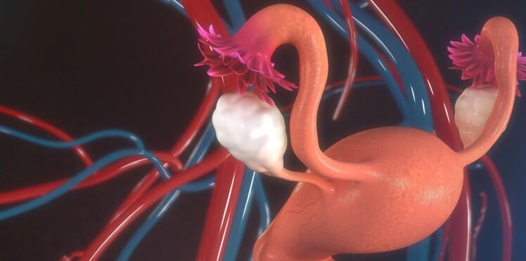 Ménopause : bientôt des ovaires artificiels pour atténuer les symptômes ?