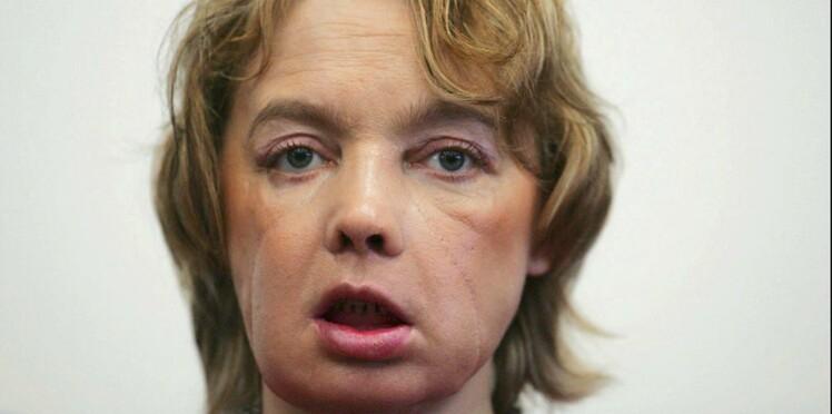 Mort d'Isabelle Dinoire, la première patiente greffée du visage
