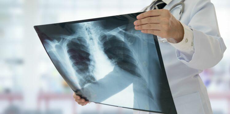 Mucoviscidose : vers le rétablissement des fonctions respiratoires ?