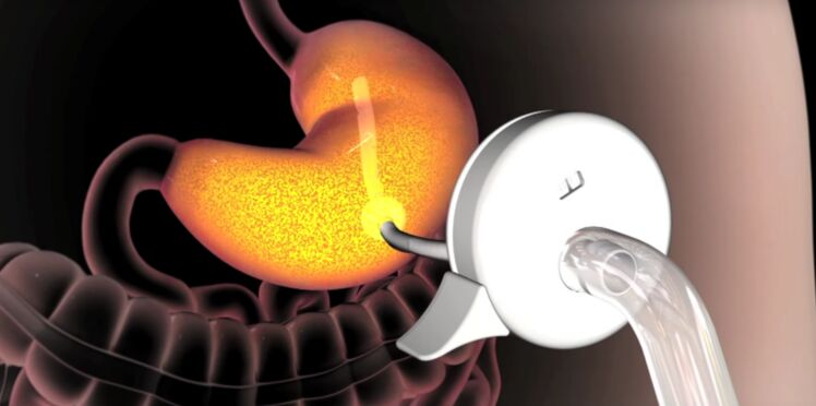 Obésité : les États-Unis autorisent un appareil qui vide l'estomac après les repas