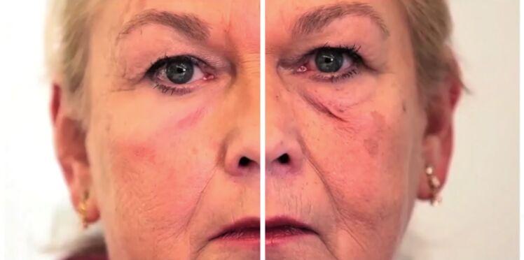 Des chercheurs développent une peau artificielle qui masque les rides (vidéo)