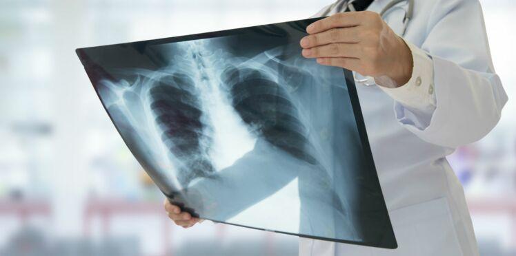 Pendant 40 ans, un jouet Playmobil était coincé dans son poumon