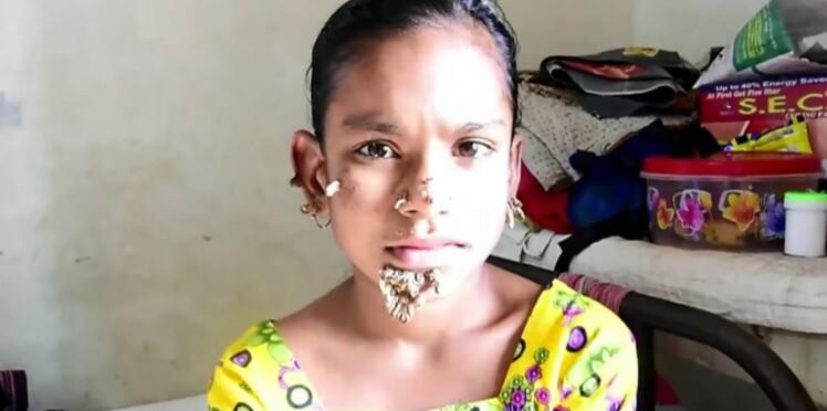 """À 10 ans, elle serait la première """"femme-arbre"""" du monde"""