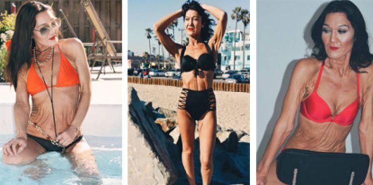 Atteinte d'une maladie rare, cette femme de 26 ans a décidé d'assumer sa peau extrêmement ridée et élastique