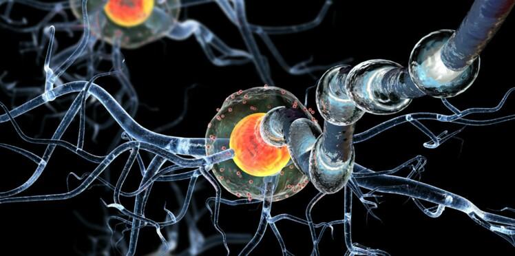 Sclérose en plaques : un nouveau traitement capable de stopper la maladie