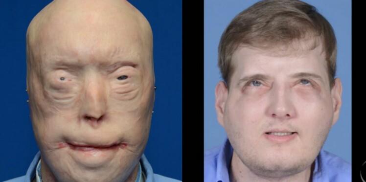 Un an après, des nouvelles de l'homme qui avait subi la première greffe totale du visage