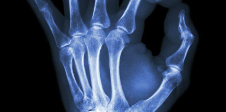 Un espoir pour guérir la polyarthrite rhumatoïde