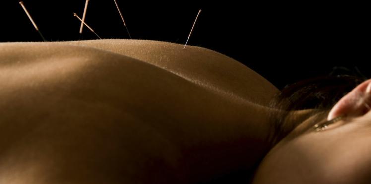 Une nouvelle indication pour l'acupuncture : la bronchite chronique