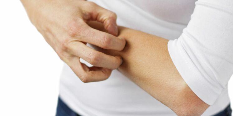 Urticaire : on ne confond plus avec l'allergie