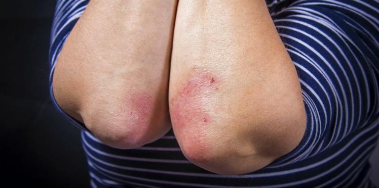 Psoriasis : perdre du poids pour atténuer les symptômes