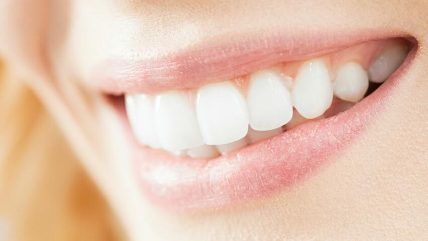 Ce qu'il faut savoir sur les couronnes dentaires