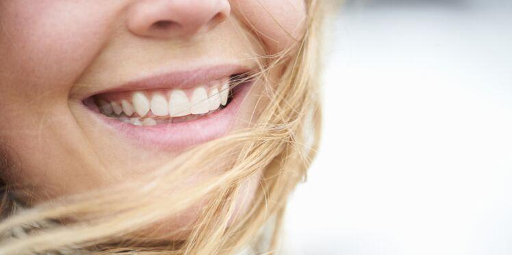 Implant dentaire : les questions que l'on se pose