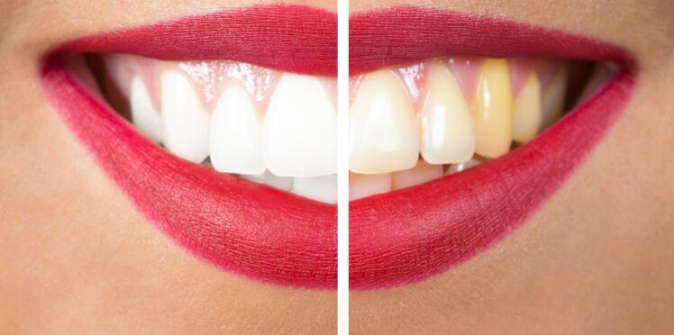 Mauvaise hygiène bucco-dentaire: quels sont les risques?
