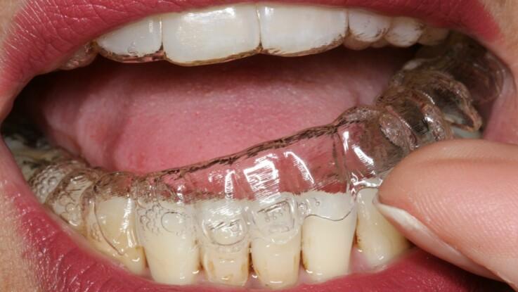 Orthodontie : tout savoir sur la méthode invisalign