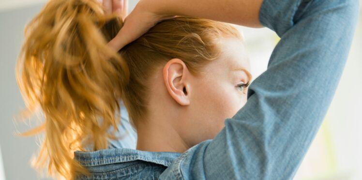 Calvitie : comment freiner la chute des cheveux ?