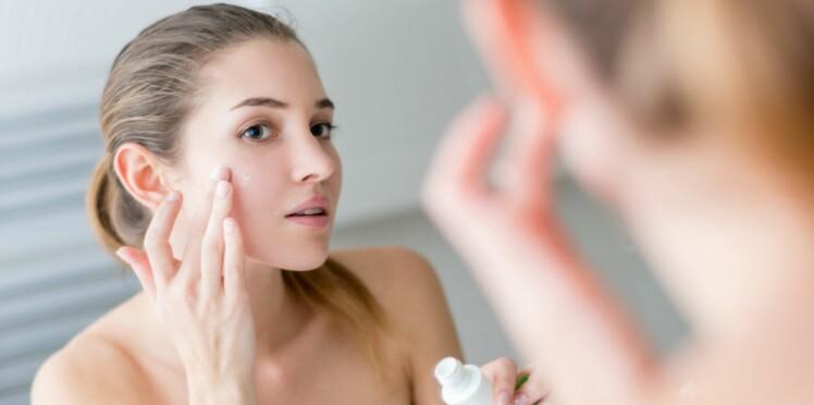 Que faire si j'ai encore de l'acné?