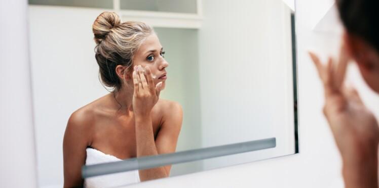 60e3d5705b8f Vrai   Faux   5 idées reçues sur l acné de l adulte   Femme Actuelle ...