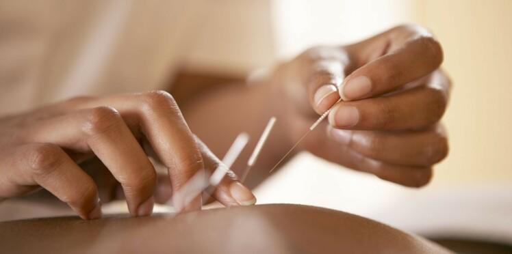 Comment se passe un rendez-vous chez l'acupuncteur ?