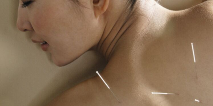 Acupuncture : une médecine chinoise qui a la cote