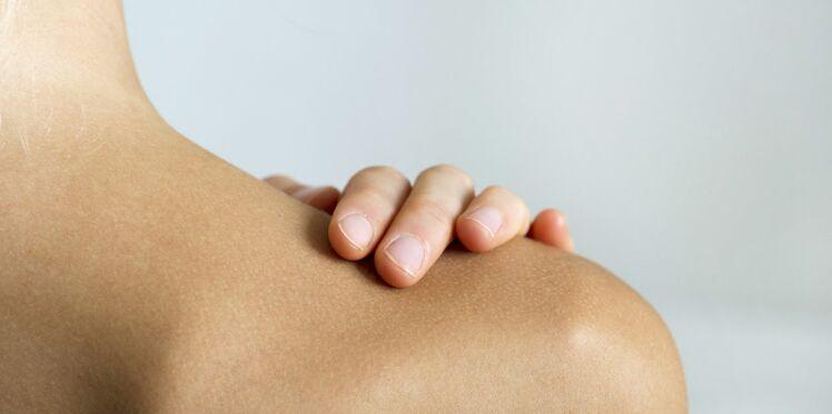 Arthrite : quand les articulations souffrent
