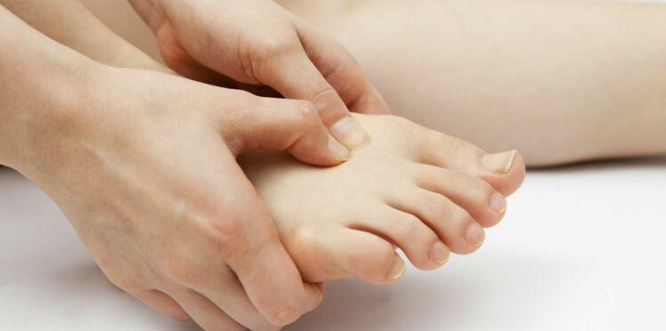 Arthrite : tout savoir sur la goutte