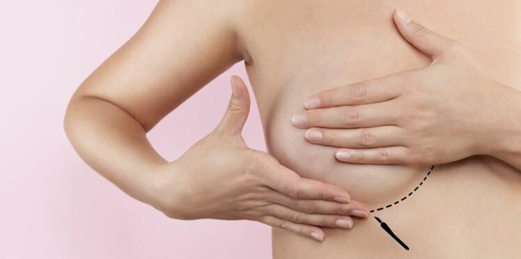 Cancer du sein : deux nouvelles techniques pour une reconstruction harmonieuse