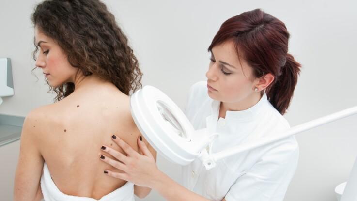 Cancers de la peau : les signes qui doivent vous alerter