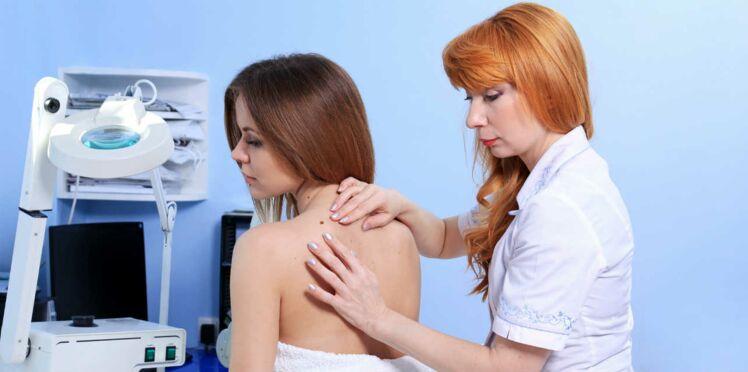 Carcinomes : les cancers de la peau les plus fréquents