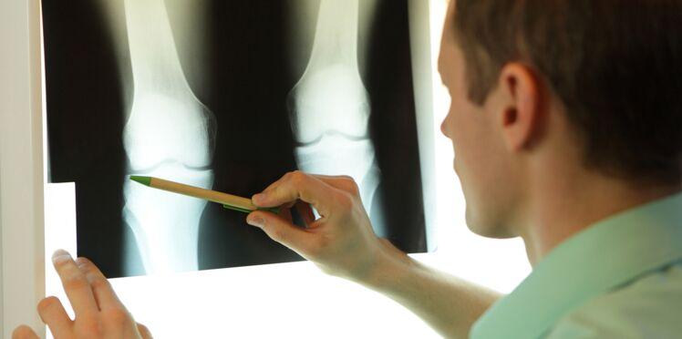 Comment améliorer la prise en charge de l'ostéoporose ?