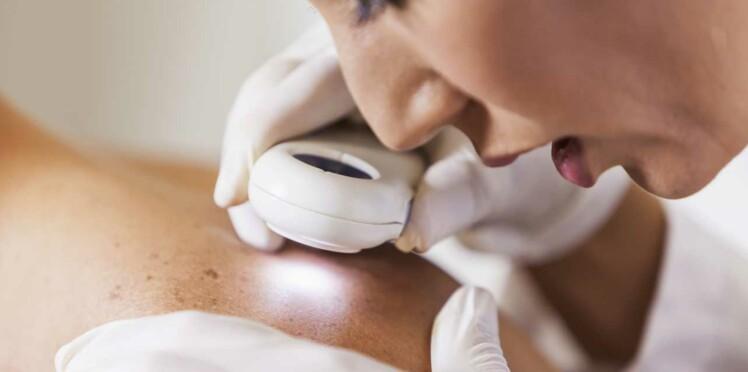 Dermatologue : que peut-il pour moi ?