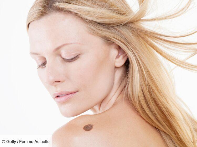 Chirurgie Esthétique Ablation Grain De Beauté