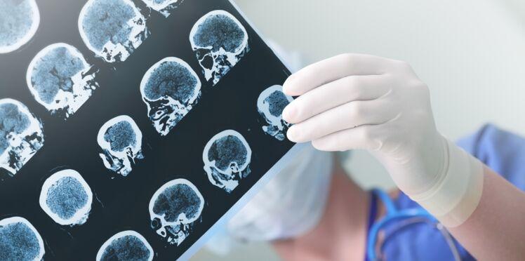 8 choses à savoir sur l'épilepsie